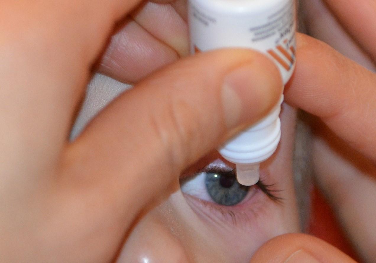 cara mengobati mata merah